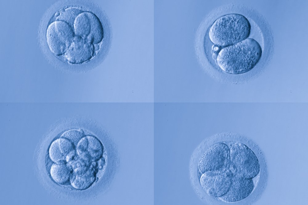 Genetic modification of human embryos as means to improve IVF