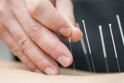 Akupunktur als Unterstützung der IVF Behandlung