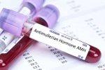 Test AMH nyní až do konce srpna pro prvních 70 pacientek zdarma
